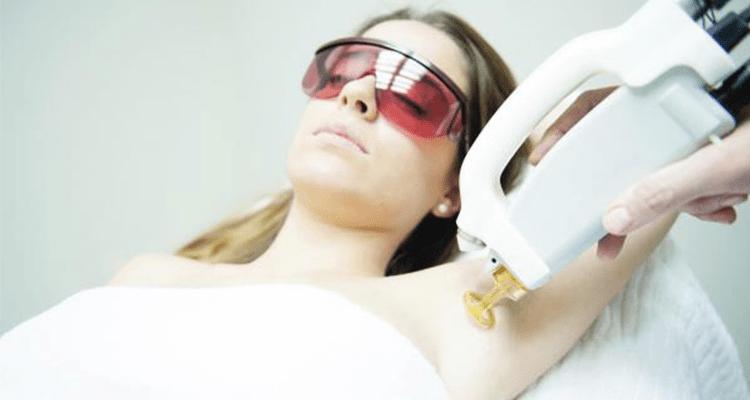 ¿Cuál es el mejor láser para un tratamiento de depilación?